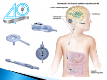 Válvulas para hidrocefalia